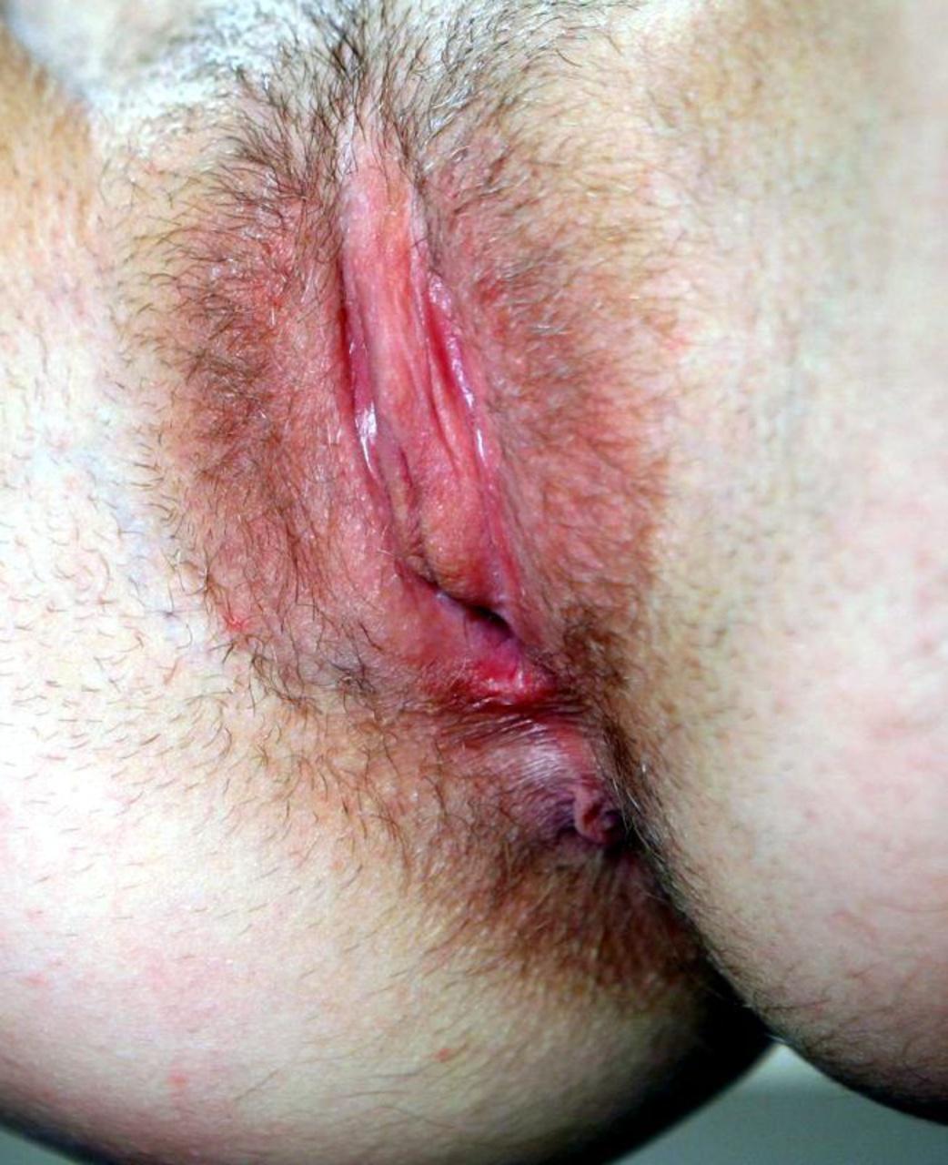 vagina-korovi
